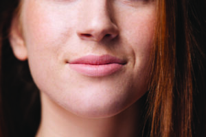 Kybella – Removing that troublesome double chin